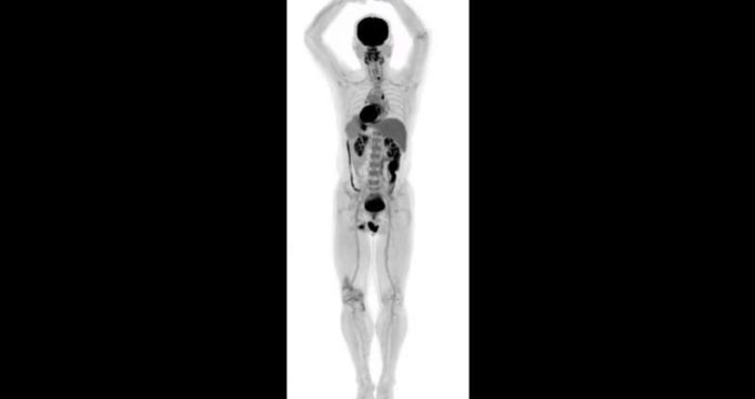 World's first total-body scanner produces incredible 3D images